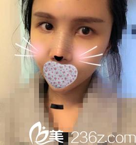 鼻修复第三天照