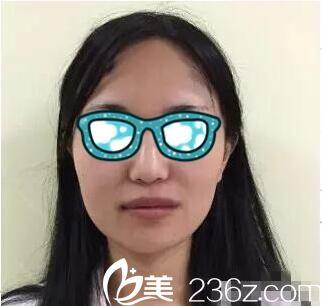 上海第九人民医院整形外科曹谊林术前照片1