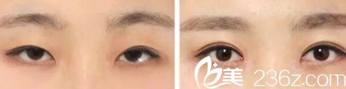 南宁天美双眼皮手术案例
