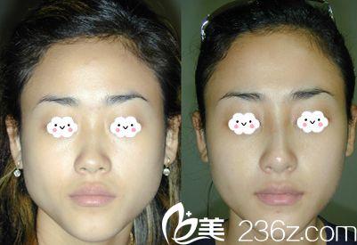 天津南开欧菲整形美容医院整形医生陈娇隆鼻案例