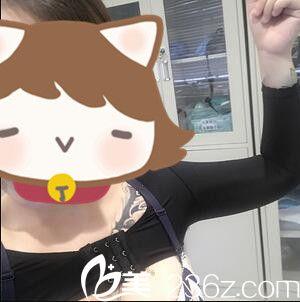 上海美立方医疗美容医院王志刚吸脂瘦手臂真人案例 术后第七天