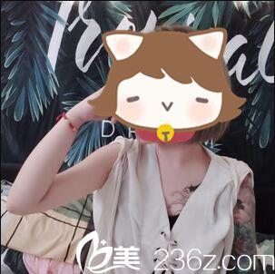 上海美立方医疗美容医院王志刚术后照片1