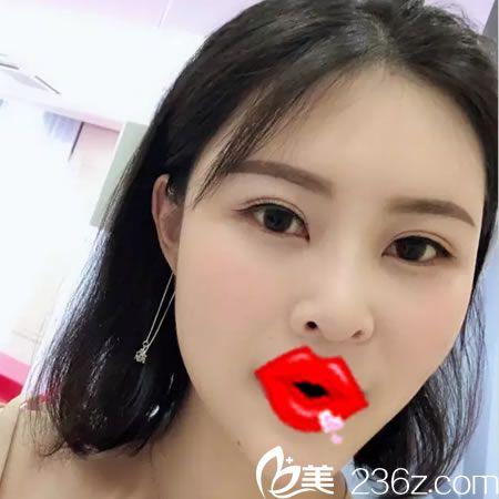 本来想打瘦脸针瘦脸,杭州维多利亚马腾却给做了自体脂肪填充全脸,术后效果挺明显哟