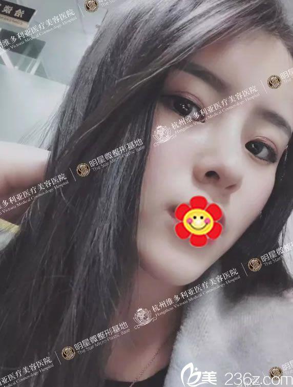 找杭州维多利亚刘中策做全面部自体脂肪填充+欧颜公主鼻综合手术3个月了