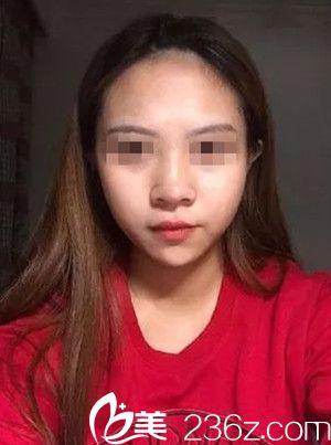 南宁亚韩整形美容医院姜亮守术前照片1