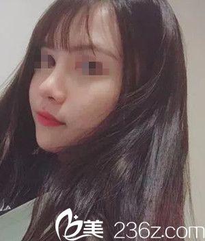 南宁亚韩整形美容医院姜亮守术后照片1