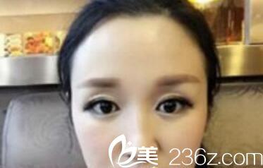 我在洛阳孔繁荣整形做了眼综合因为单纯双眼皮手术都不能拯救我的眼睛