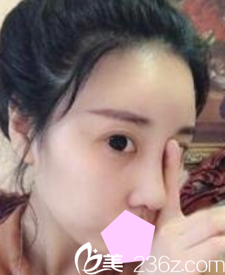 看了我找运城华美整形刘安堂做的隆鼻失败修复效果,就知道刘安堂做鼻综合怎么样了?