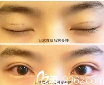 信阳金霞真人展示日式埋线双眼皮手术过程 术后眼睛好看不止一点点