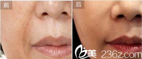 北京济诚仁整形美容脂肪填充法令纹案例