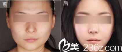 北京济诚仁医疗美容门诊部面部轮廓效果