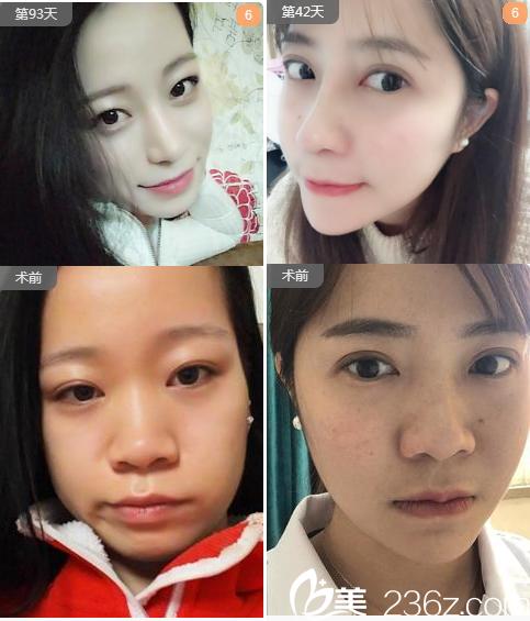 广州曙光蒋思军耳软骨复合隆鼻和膨体隆鼻案例