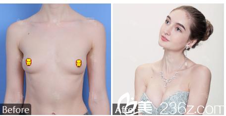 广州曙光刘杰伟假体隆胸案例