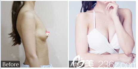 广州曙光刘杰伟曼托假体隆胸隆胸案例