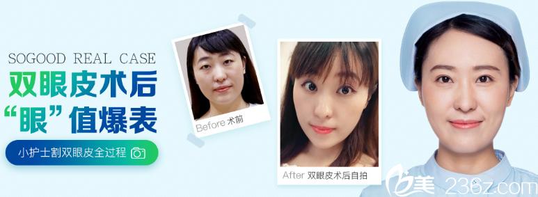 广州曙光王娟双眼皮案例