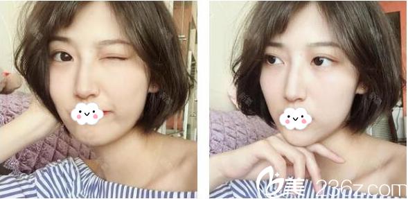 对比了广州南方医院整形美容外科鲁峰和冯传波的案例后找冯传波做了双眼皮