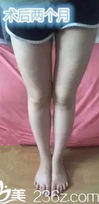 自从在沧州市中心医院烧伤整形外科吸脂瘦腿后 好多人羡慕我有一双筷子腿