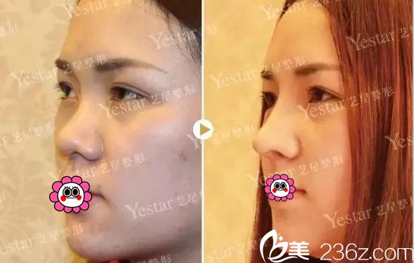 北京艺星医疗美容医院谷亦涵注射隆鼻效果