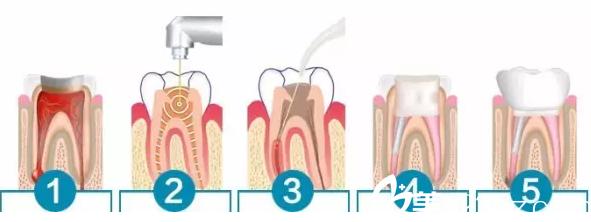 梅河口市百颜牙齿治疗原理