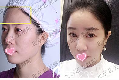 北京艺美医疗美容诊所自体脂肪丰额头案例