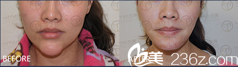 北京艺美整形美容医院生长因子注射失败修复效果