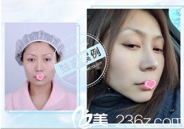 北京艺美王东整形不开刀去下颌角效果