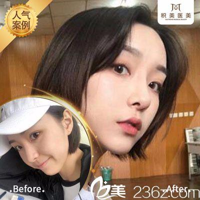 广州积美医疗整形美容医院鼻综合隆鼻案例