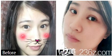 广州积美医疗整形美容医院双眼皮案例