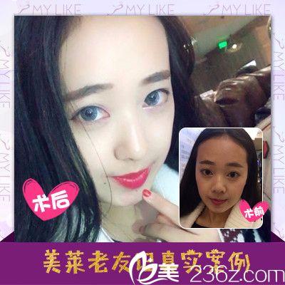 深圳美莱梁晓健做的全脸自体脂肪填充案例