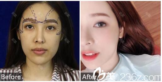 广州韩妃整形医院曾繁茂自体脂肪填充全脸案例