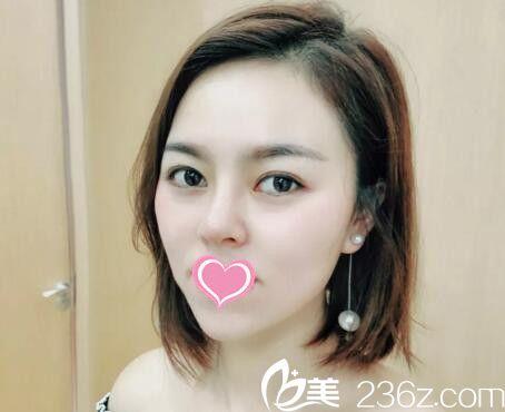 真人案例:看她找郴州爱思特黄见勇院长做鼻修复术一个月后效果变化