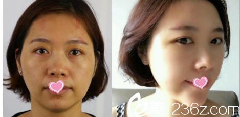 北京美联臣脂肪填充脸部案例
