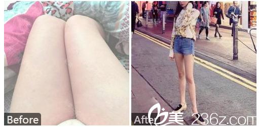 广州壹加壹整形美容医院张红艳做的大腿吸脂案例