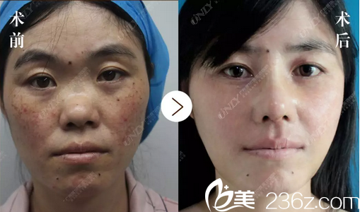 实拍广州壹加壹整形医院李明主任肋软骨鼻综合隆鼻手术过程和术后恢复图片