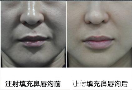 徐开亚主任注射鼻唇沟前后对比案例