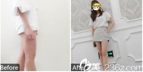 深圳美加美陈群医生大腿吸脂案例图