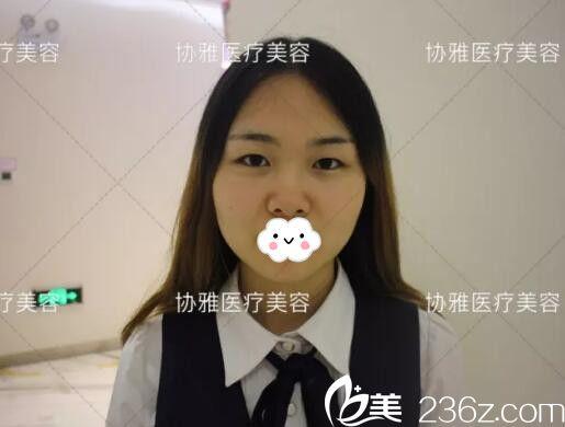 长沙协雅医疗美容医院邹笑寒术前照片1