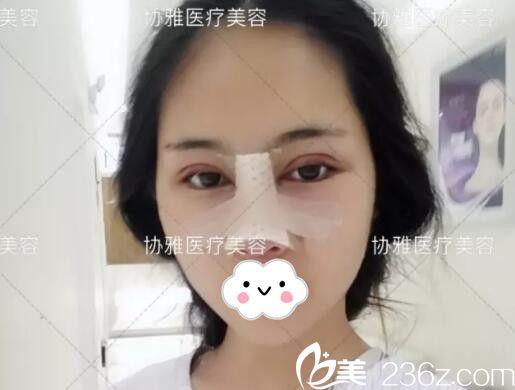 眼鼻手术后即刻术后效果
