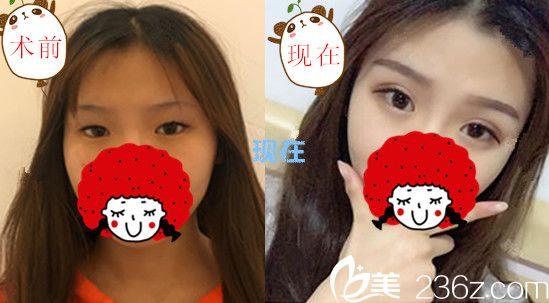 芜湖珠儿丽整形赵晓兰给我做的埋线双眼皮+开眼角术后几乎没有恢复期 照片为证