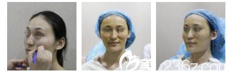 南京维多利亚整形美容医院金颂良术前照片1