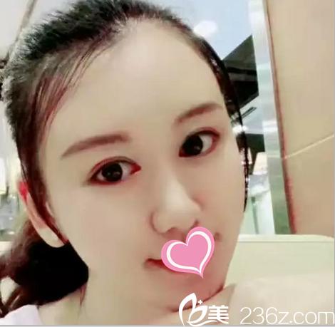 北京斯嘉丽自体真皮隆鼻怎么样?看我找宋磊做真皮鼻综合术前术后65天对比效果