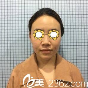 沈阳伊美尔医疗美容医院刘紫薇术前照片1
