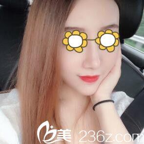沈阳伊美尔医疗美容医院刘紫薇术后照片1