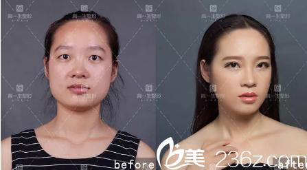 这是一位大三的女同学做的双眼皮的案例