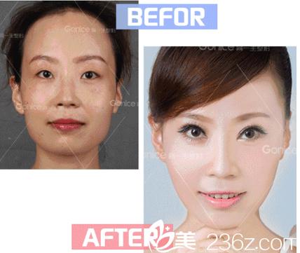 公务员在西安高一生做的双眼皮恢复两个月的图片