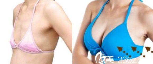 合肥申诚整形自体脂肪隆胸案例