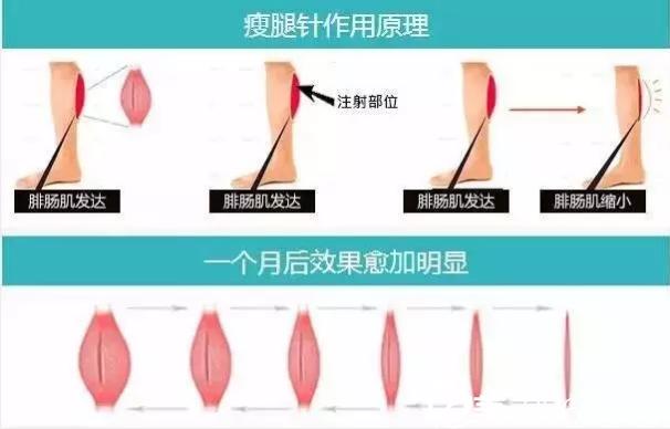 瘦脸除皱瘦腿作用原理