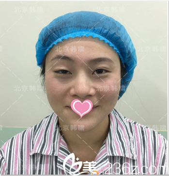 北京韩啸医疗美容门诊部韩啸术前照片1
