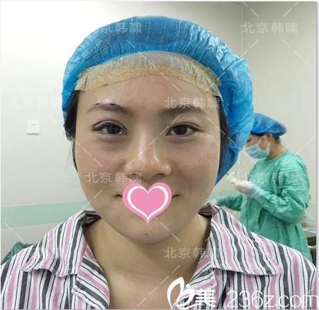 北京韩啸医院做上睑下垂矫正术后即刻照