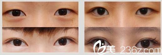王红敏医生做双眼皮案例